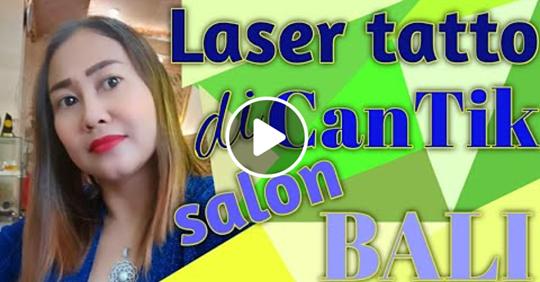 Laser Tatto